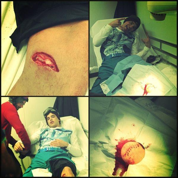 Chłopak Paris Hilton miał wypadek (FOTO)