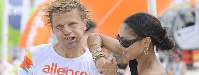Co się stało z twarzą Wojtka Brzozowskiego?! (FOTO)