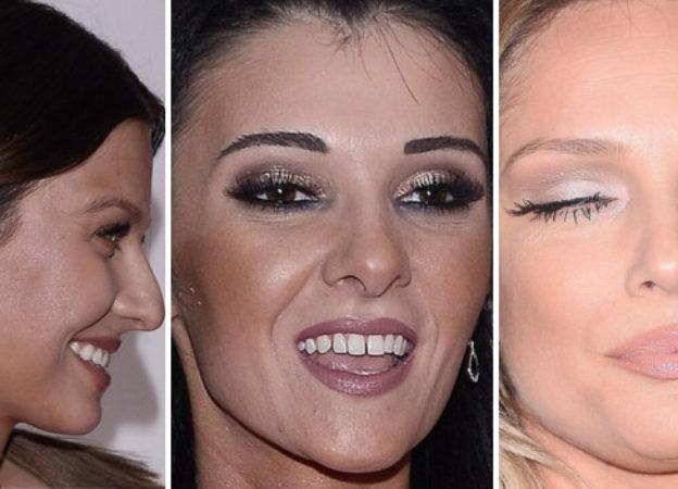 Makijażowe wpadki na Gali Mistrzów Sportu