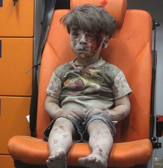 Dalsze losy rannego chłopca z Aleppo przywracają wiarę w ludzkość