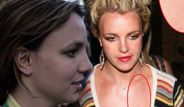 Britney Spears, trądzik