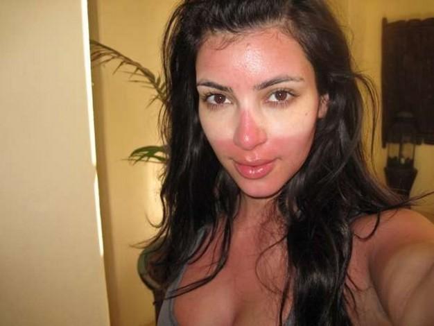 Kim Kardashian z poparzoną twarzą