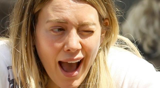 Co się stało z twarzą Hilary Duff?!
