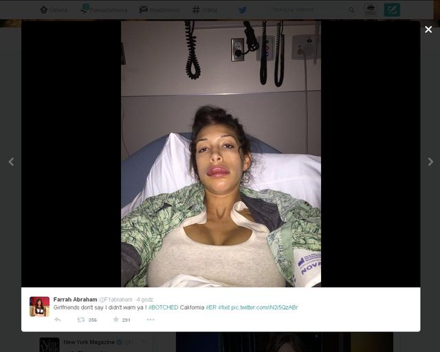 Farrah Abraham po nieudanym zabiegu wszczepienia implant�w do ust