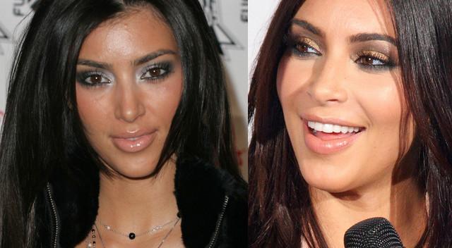 Kim Kardashian żałuje zaś tego, że przez wiele lat nie regulowała brwi: - Moja kosmetyczka przez dwa lata namawiała mnie, żebym wyregulowała brwi, ale ja powtarzałam, że tego nie potrzebuję. W końcu jej pozwoliłam, a kiedy już to zrobiła, moje życie się zmieniło! Cała twarz zaczęła wyglądać inaczej!