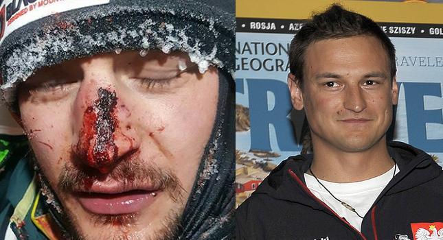 Przerażające zdjęcie polskiego alpinisty: dostałem w głowę kamieniem