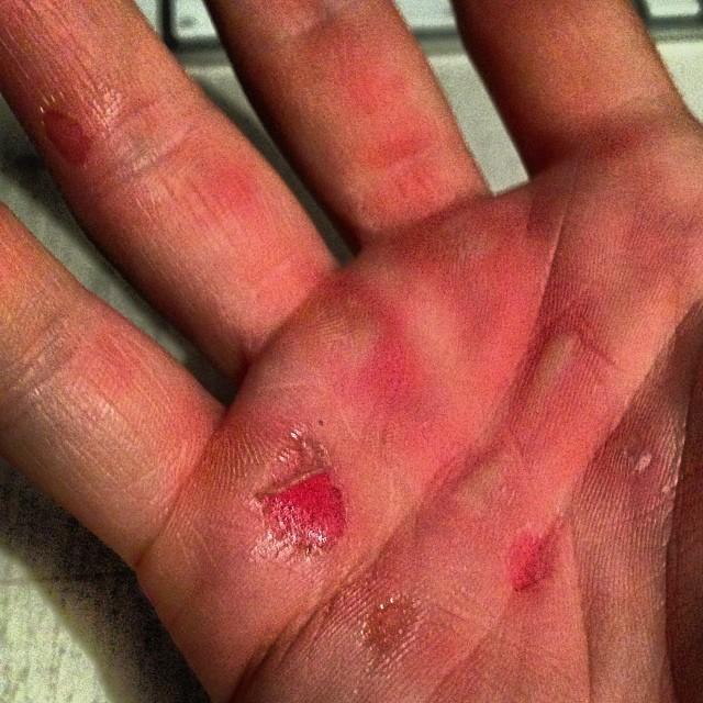 Od ostrych treningów crossfit ma rany na rękach (FOTO)