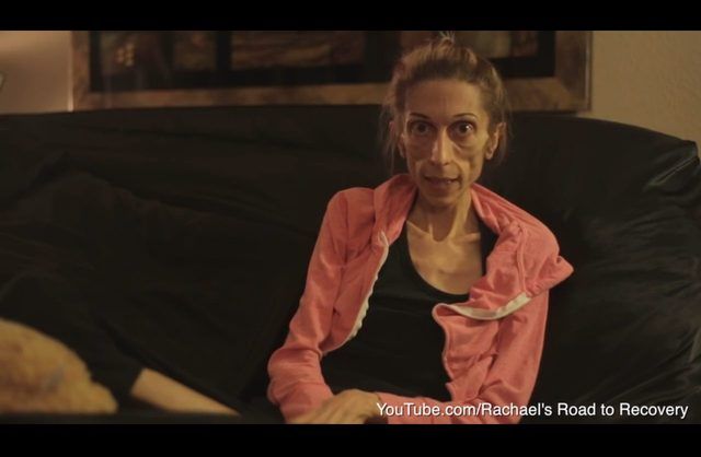 Szok. Ta aktorka chora na anoreksj� wa�y�a nieca�e 20 kg