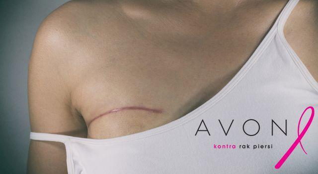 Avon utworzył stanowisko dla Patrycji z rakiem piersi. Wcześniej ją zwolnili