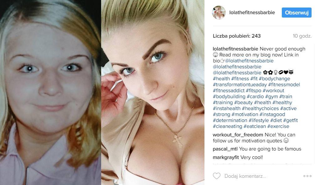 Gdy była tęga, szydzili z niej nazywając Barbie – prawie umarła na anoreksję