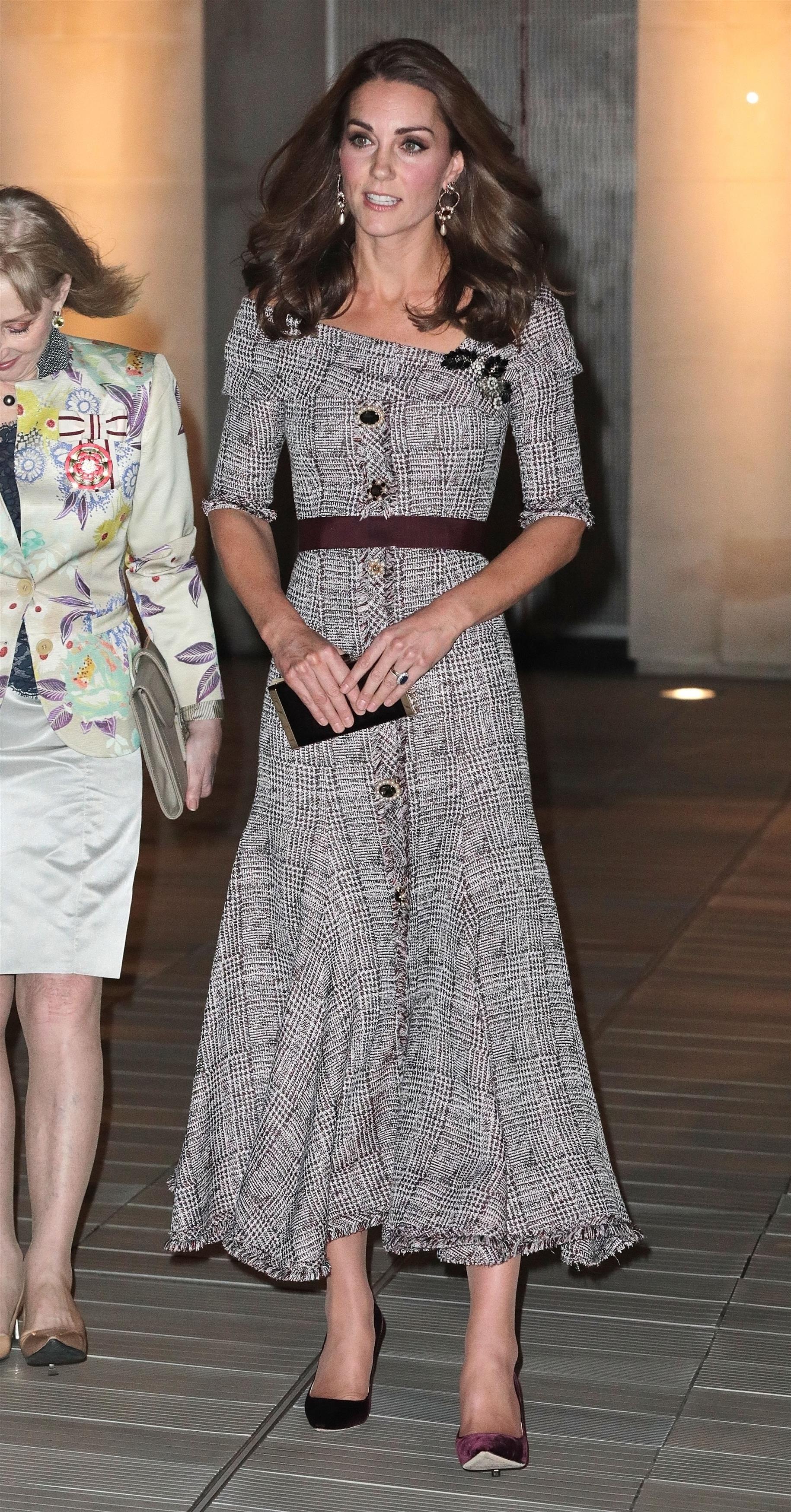 Kate Middleton i jej koszmarnie spuchnięte KOSTKI! Co się stało księżnej?!