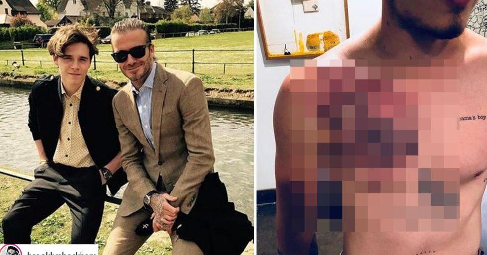 Brooklyn Beckham Zrobił Sobie Ogromny Tatuaż Na Klatce