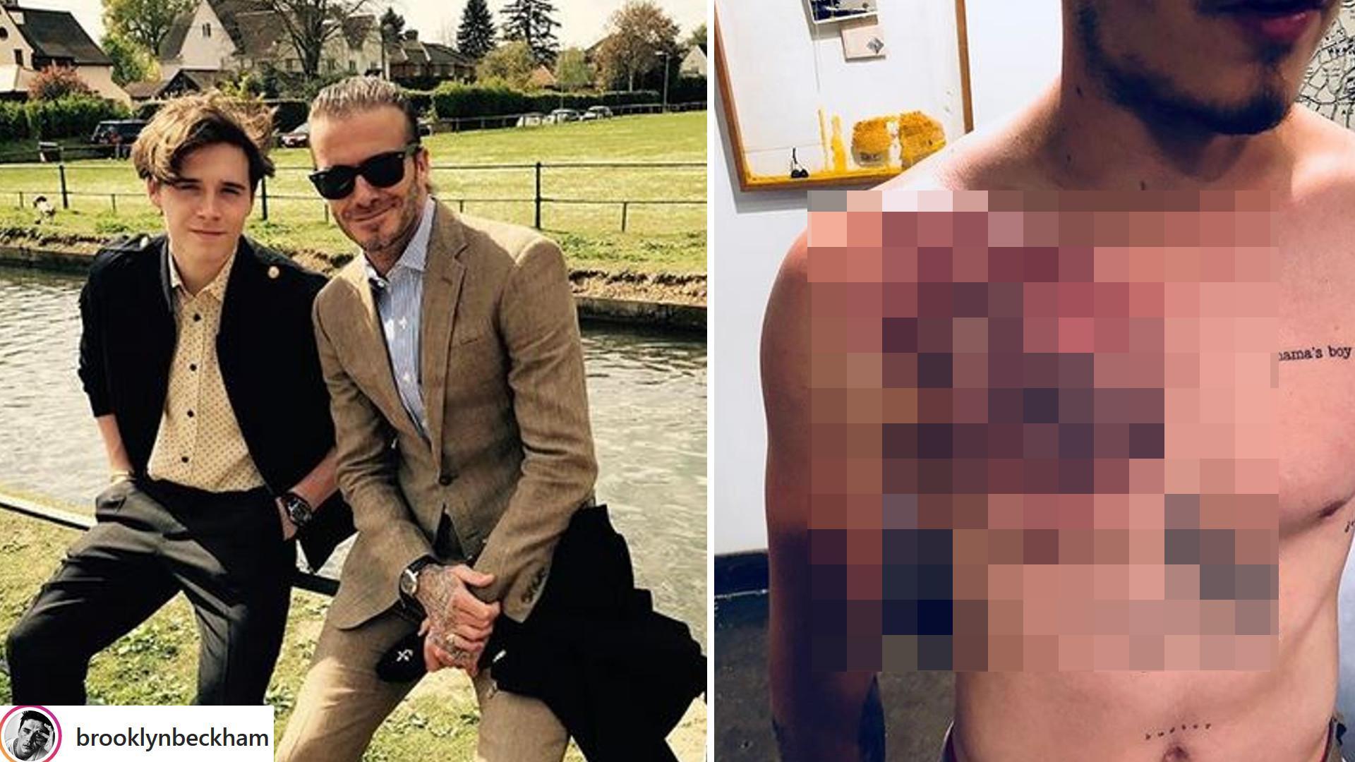 Brooklyn Beckham zrobił sobie OGROMNY tatuaż na klatce piersiowej