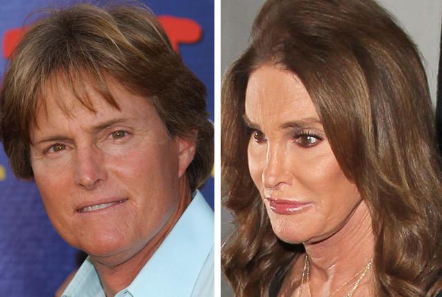 Burce Jenner przed i po operacjach plastycznych