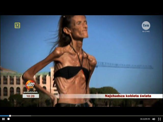 Najchudsza kobieta świata u Ewy Drzyzgi