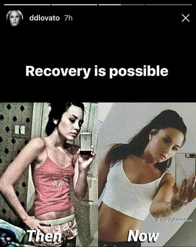 Znana wokalistka pokazała zdjęcie sprzed leczenia bulimii. Wyglądała STRASZNIE