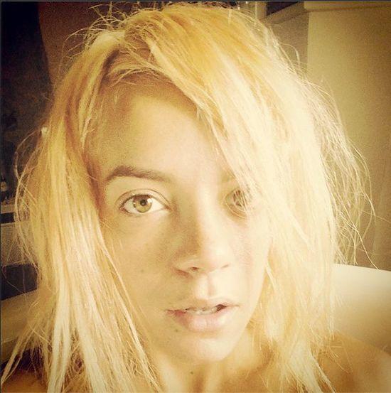 Lilly Allen w utlenionych włosach