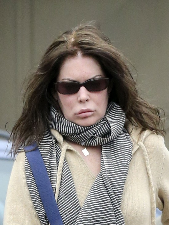 Lara Flynn Boyle zmasakrowa�a sobie twarz! (FOTO)