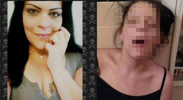 Kobieta pokazała zdjęcia z czasu, gdy była uzależniona od heroiny (+18 l.)