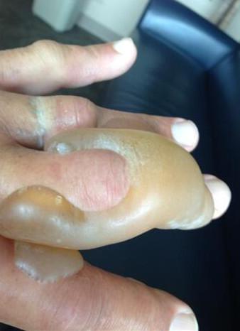 Hulk Hogan pochwalił się poparzoną ręką (FOTO)