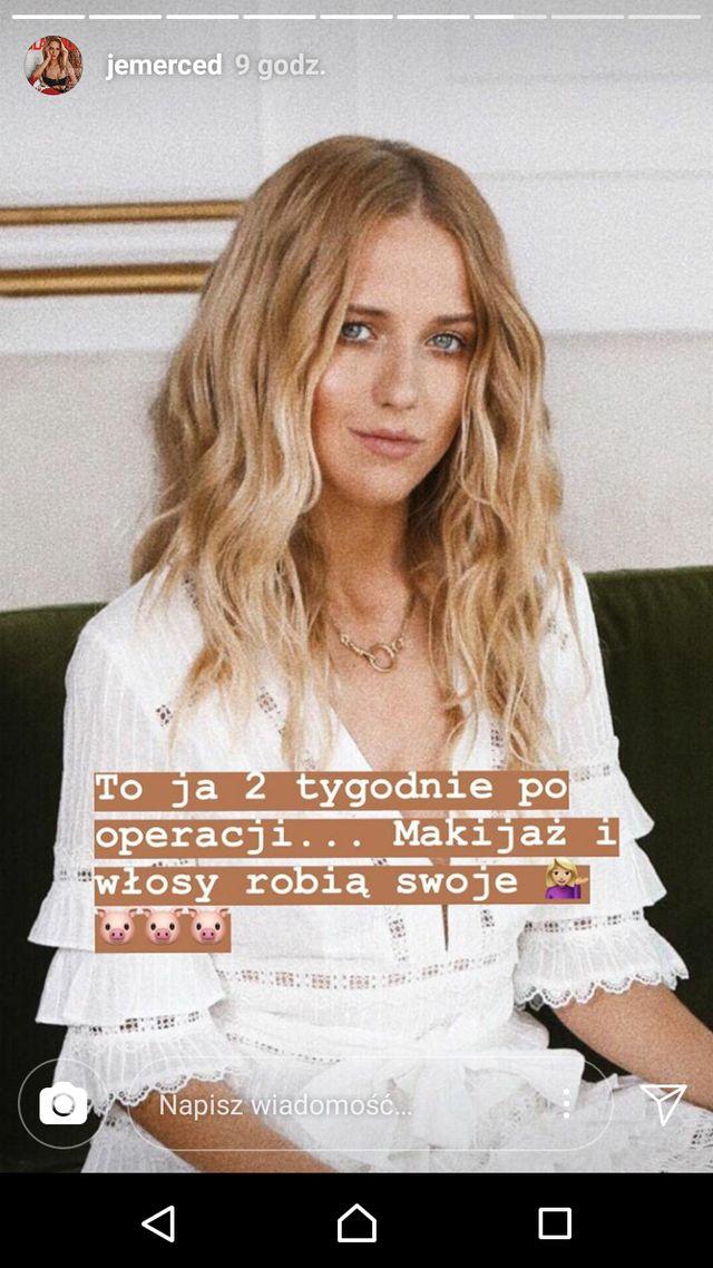 Jessica Mercedes pokazała NOWĄ twarz po operacji (Instagram)