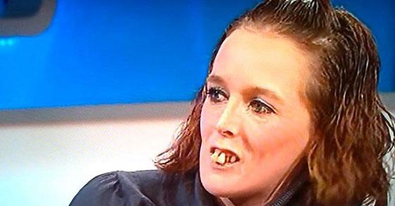 Jeremy Kyle ZAFUNDOWAŁ nowe zęby kobiece ze swojego programu!