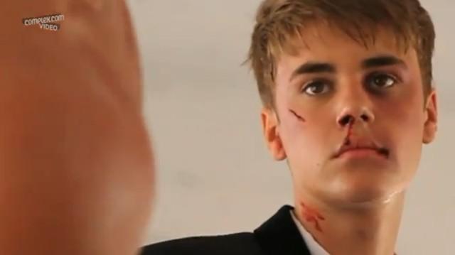 Justin Bieber oberwał – aż krew się leje (FOTO)