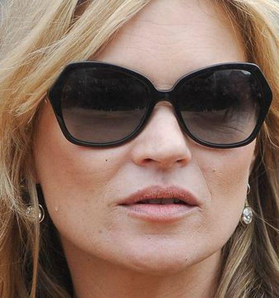 Kate Moss próbowała ukryć zmarszczki? (FOTO)