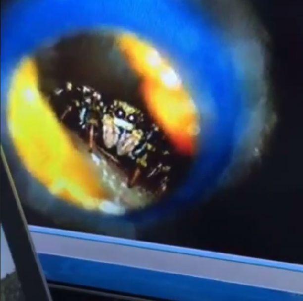 Szok! Katie Melua przez tydzień nosiła pająka w uchu