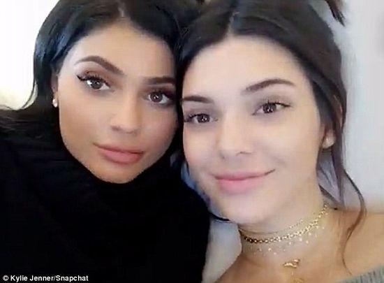 Te zdjęcia pokazują, że Kendall Jenner powiekszyła usta i wygląda jak nie ona