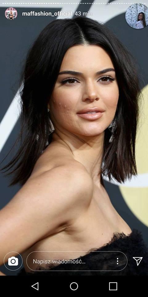 Co się dzieje z twarzą Kendall Jenner? (ZDJĘCIA)