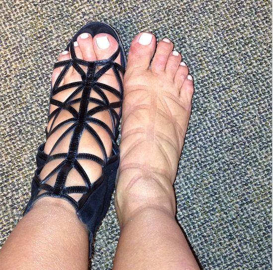 Czyje są te spuchniete stopy?