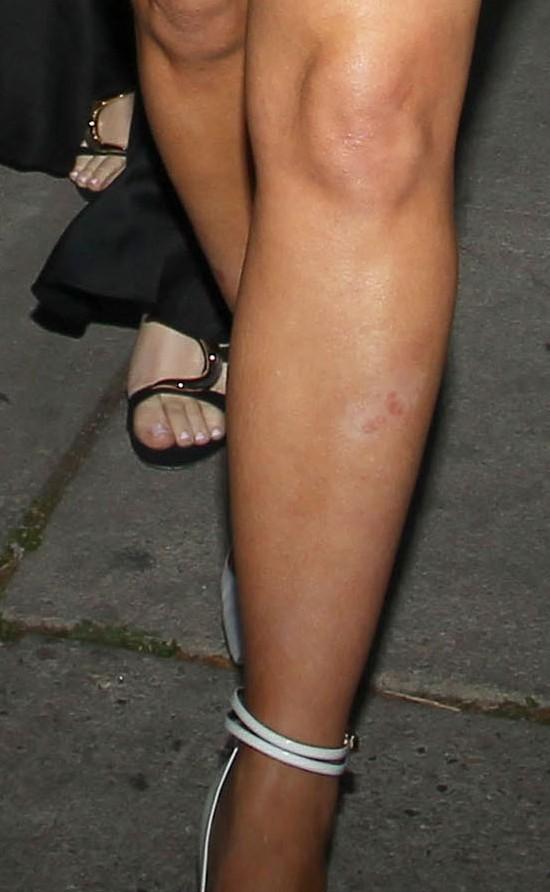 Kim Kardashian znowu walczy z łuszczycą (FOTO)