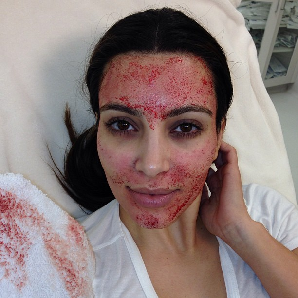 Kim Kardashian upiększa się za pomocą krwi (FOTO)