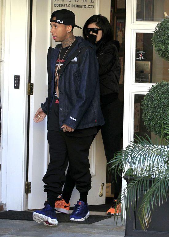 Co się stanie, gdy Kylie Jenner zabierze rękę z ust?