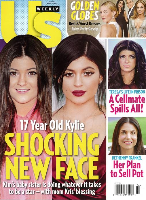 Nowa szokująca twarz Kylie Jenner