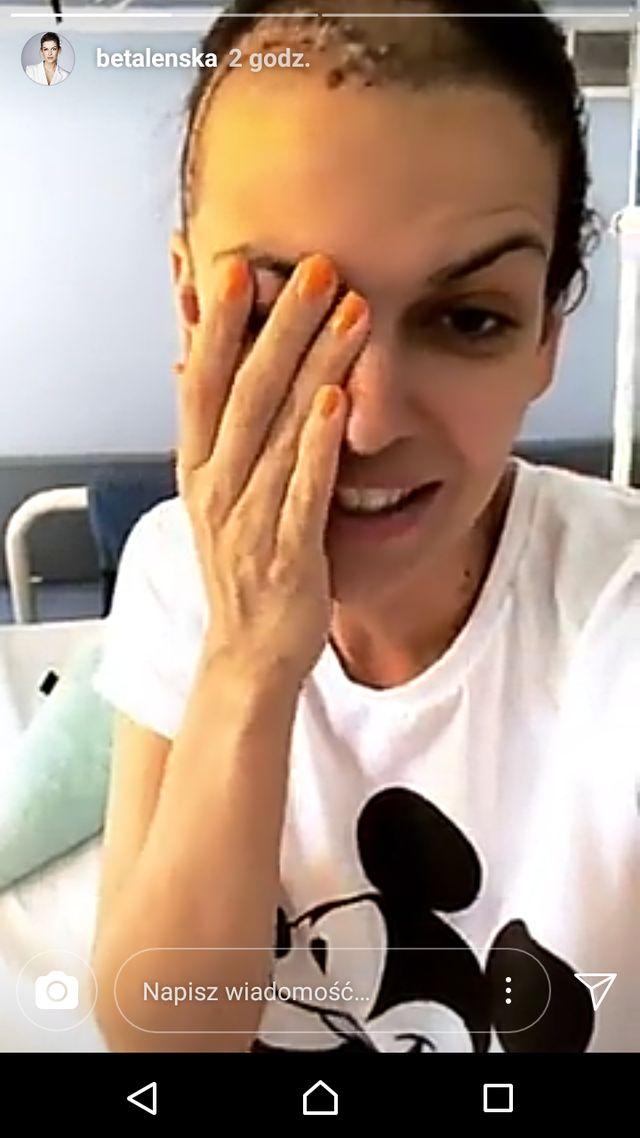 Alżbeta Lenska pokazała WIELKĄ bliznę po operacji (Instagram)