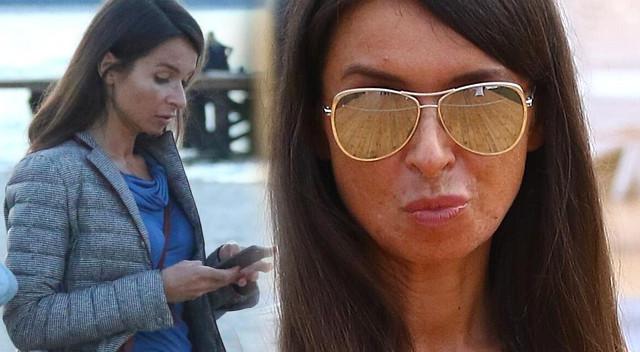 Marta Kaczyńska ostrzega przed SOLARIUM
