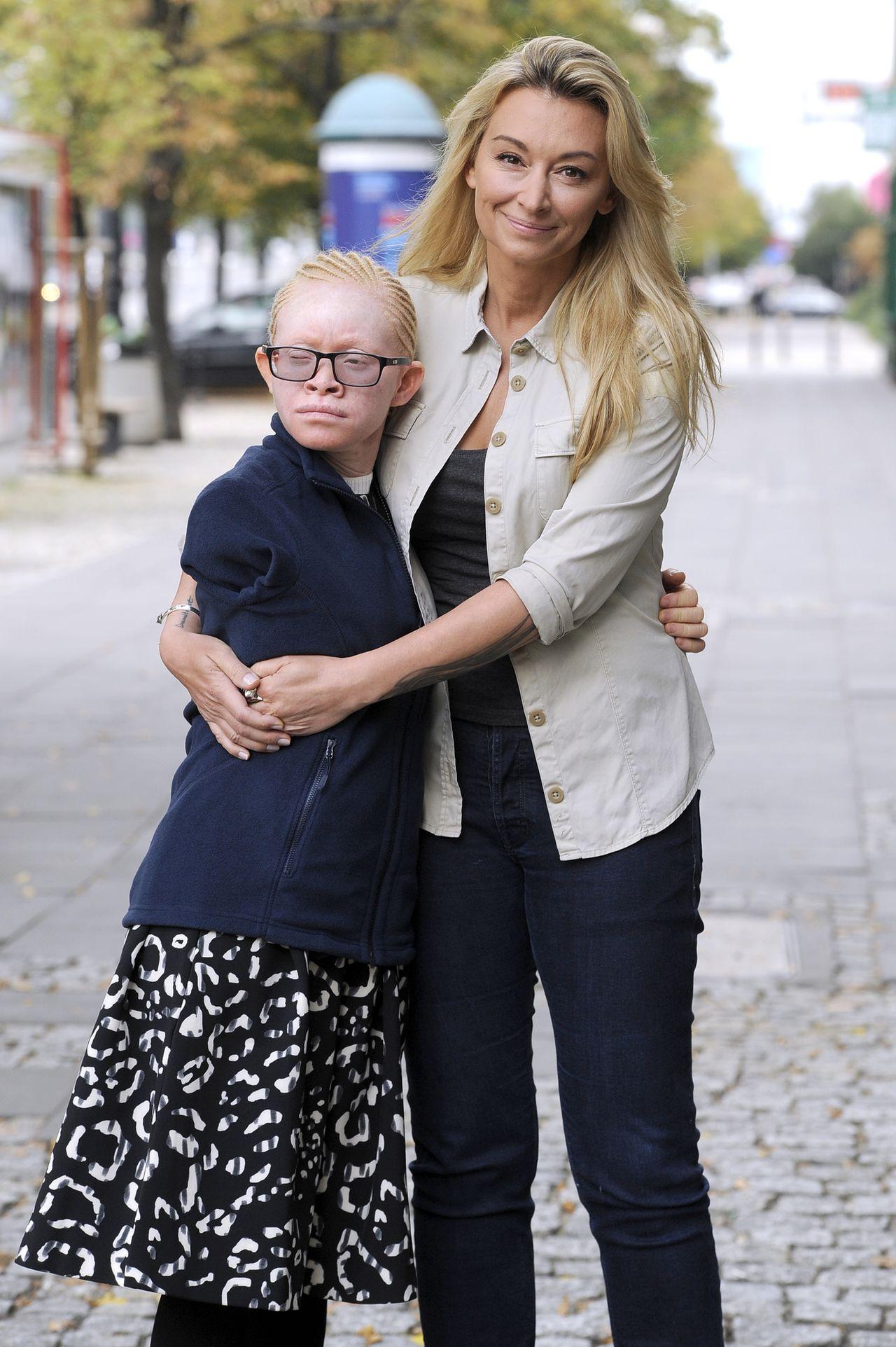 Okaleczona Kabula, albinoska z Tanzanii adoptowana przez Martynę, przyjechała do