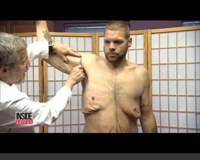 Schud� 190 kg, lekarze wyci�li mu 15 kilo wisz�cej sk�ry