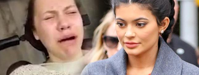 Po znieczuleniu myślała, że jest Kylie Jenner [VIDEO]