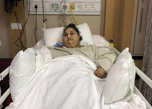 Zmarła NAJGRUBSZA kobieta świata - przez 25 lat nie wychodziła z domu