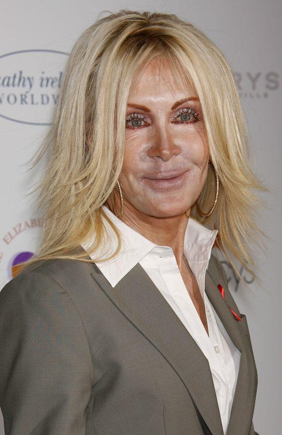 Joan Van Ark powinna zwolnić chirurga i makijażystę