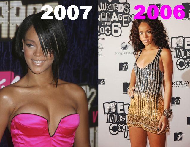 Rihanna ma implanty?