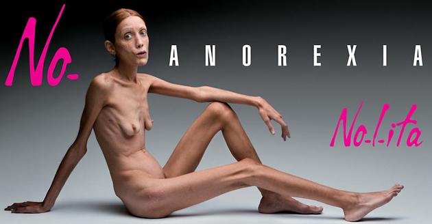 Nolita przeciwko anoreksji