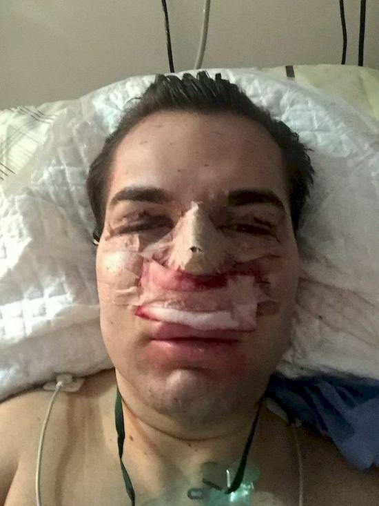 Żywemu Kenowi ODPADA NOS! Rodrigo Alves przesadził z operacjami