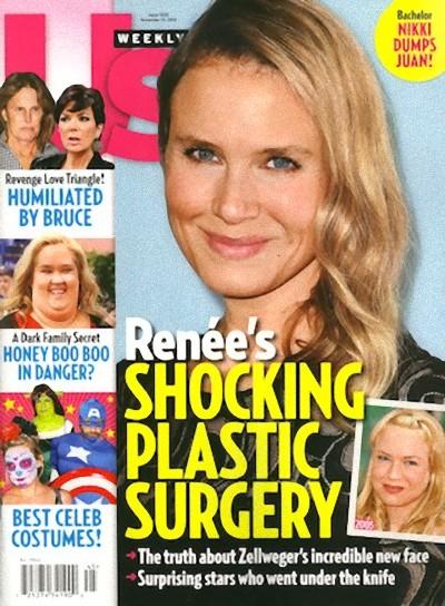 Renee Zellweger zmieni�a twarz dla... pieni�dzy?