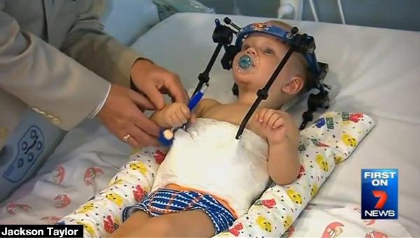To CUD! Dziecko, któremu głowa oderwała się od karku CHODZI!