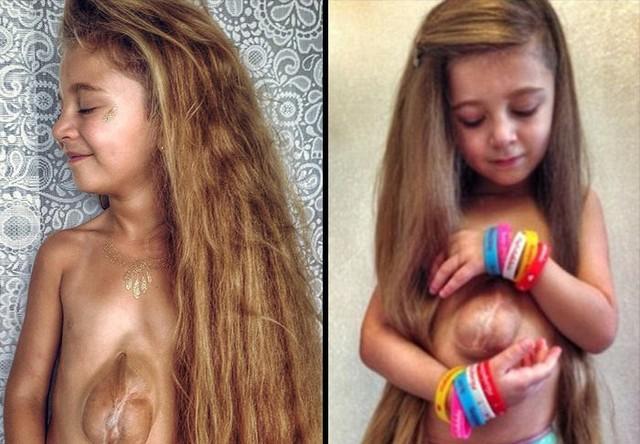 Ta 6-letnia dziewczynka ma… serce poza klatką piersiową!