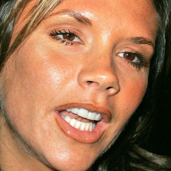 Victoria Beckahm pokonała problemy ze skórą w nietypowy sposób. Jaki?